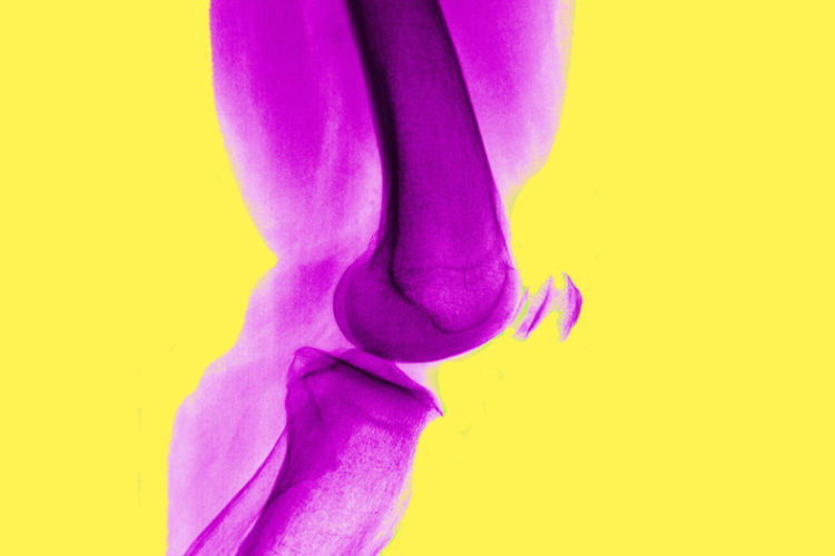 Arthroscopic Surgery Doesn't Help With Arthritis Knee Pain